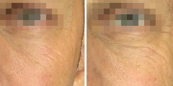 טיפול אנטי אייג'ינג לשיקום עור יבש