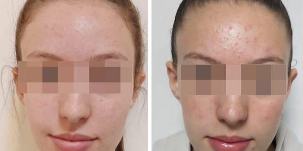 טיפול בעור שמן ואקנה קל
